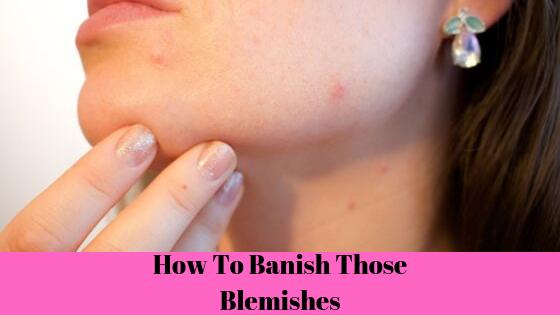 blemishes